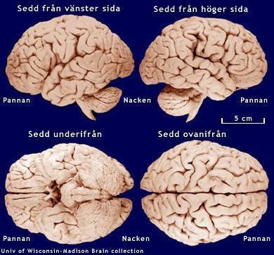 frontallobsdemens