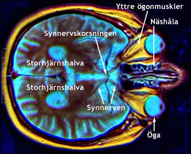 ont i vänster hjärnhalva